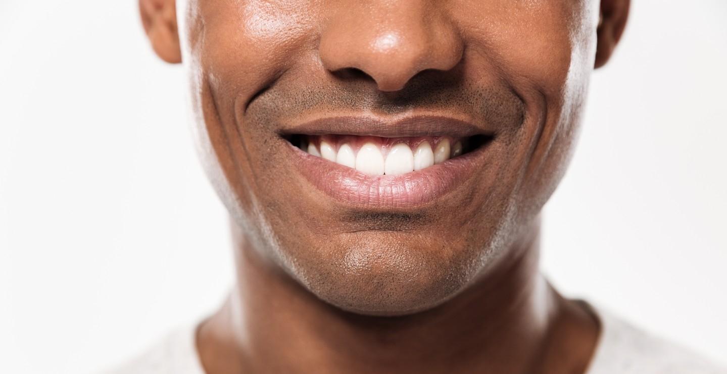 Weiße Zähne nach einem professionellen Zahnbleaching in unserer Ordination in 1010 Wien