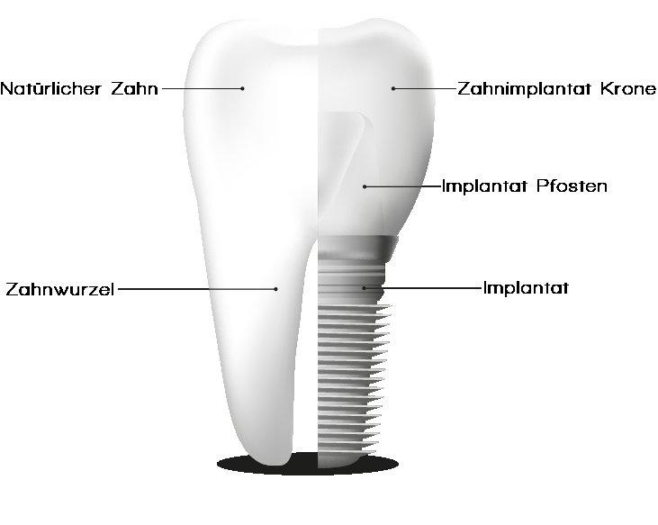 Zahnimplantat mit Zahnkrone