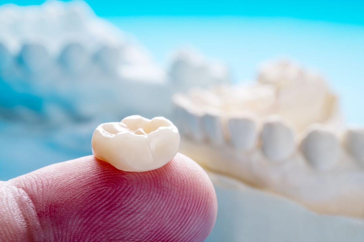 Zahnkronen und Zahnbrücken fertigen wir individuell für Sie in Wien an
